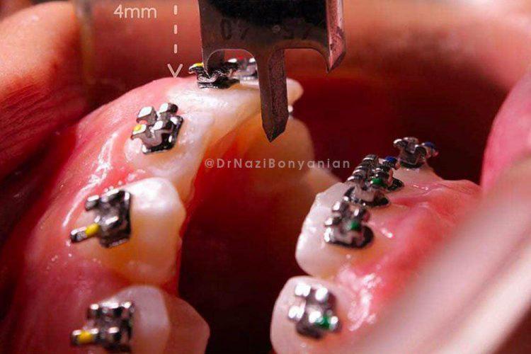 کلینیک-دندانپزشکی-آرکا-گالری-ارتودنسی-دندان