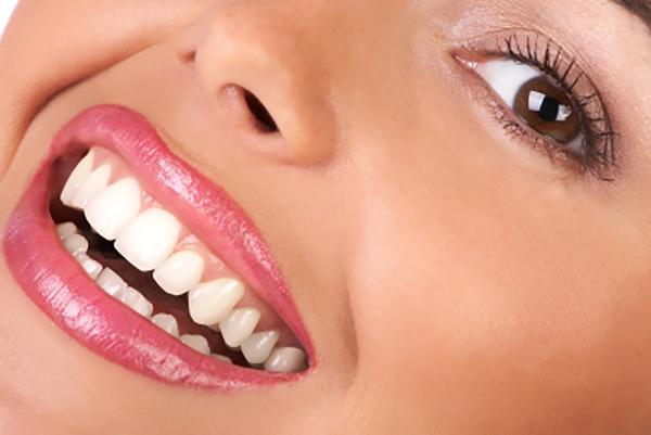 کلینیک-دندانپزشکی-آرکا-گالری-دندانپزشکی-زیبایی