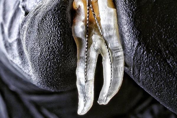 کلینیک-دندانپزشکی-آرکا-گالری-عصب-کشی-دندان